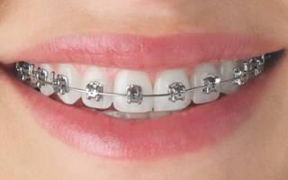Брекеты на верхние зубы