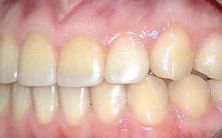 Как остановить кариес зубов