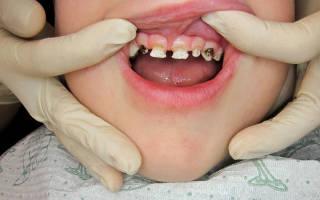 Кариес на передних зубах у ребенка