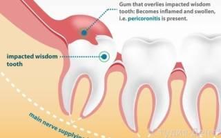 Болит десна около зуба мудрости