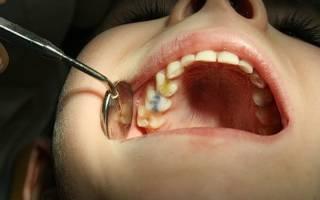 На сколько дней кладут мышьяк в зуб