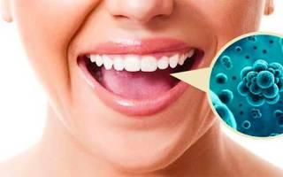Герпес полости рта