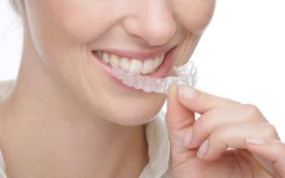 Отбеливающие капы для зубов