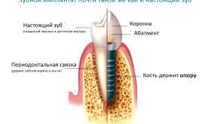 Импланты зубов как делают