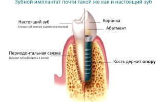 Как вставляют импланты
