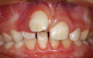 Зуб растет на десне