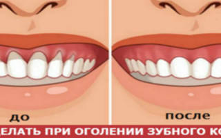 Оголилась шейка зуба как лечить
