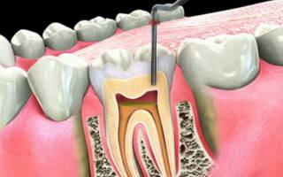 Зуб с удаленным нервом болит при надавливании