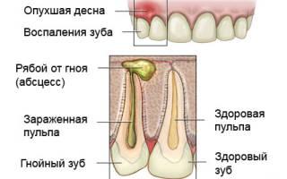 В каких случаях вырывают зуб