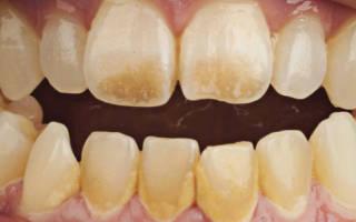 Зубной налет как избавиться в домашних условиях