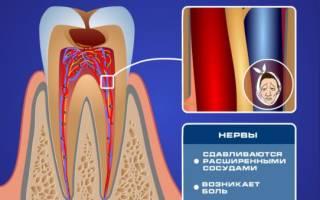 Чем снять чувствительность зубов