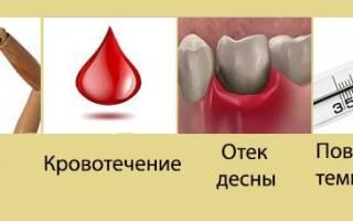 Лечение после удаления зуба мудрости