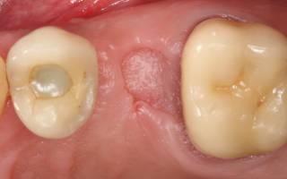 Как ухаживать за десной после удаления зуба