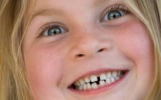 Кривые корни зубов