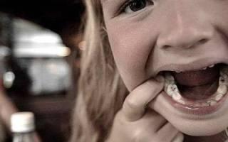 Какие пломбы ставят на молочные зубы