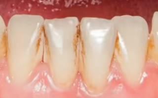 Вредна ли чистка зубов ультразвуком