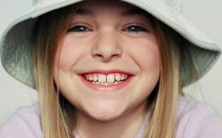 Расположение зубов у детей