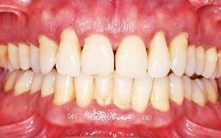 Пародонтоз зубов лечение