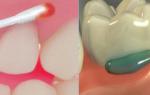 Анестезиология в стоматологии