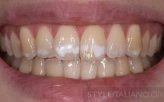 Как убрать белые пятна на зубах