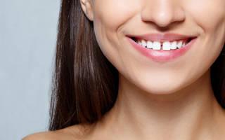 Дырка между передними зубами