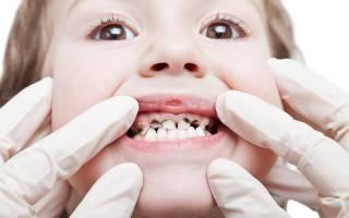 Почему у ребенка черные зубы