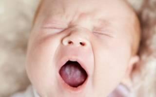 Белый язык у ребенка 2 года
