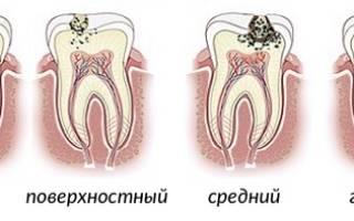 Болит зуб после пломбирования что делать