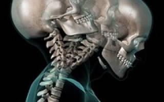 Хроническая боль в шее после падения