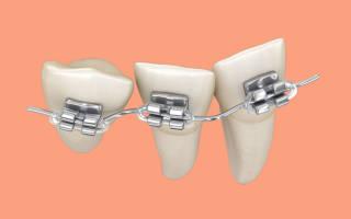 Почему брекеты не ставят на последние зубы