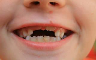 Прорезывание постоянных зубов у детей