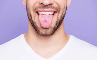 Причины белого налета на языке у взрослого
