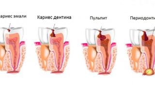 Виды периодонтита