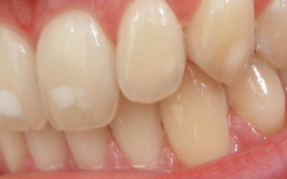 У ребенка на молочных зубах белые пятна