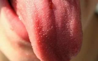 Шишечка на языке