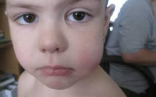 Болит щека у ребенка