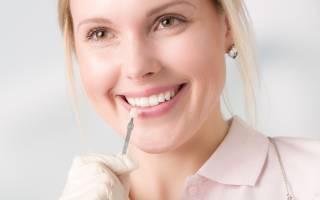 Можно ли поставить винир на один зуб
