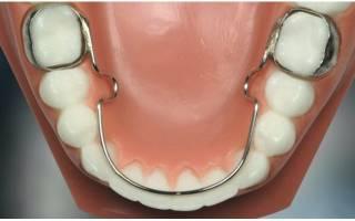 Болят зубы после снятия брекетов