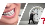 Можно ли выровнять зубы в 30 лет
