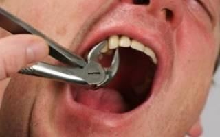 Отек щеки после удаления зуба мудрости