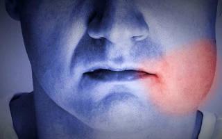 Почему опухла десна после удаления зуба