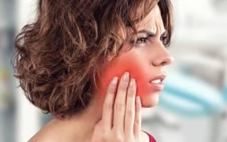 Боль в щеке с внутренней стороны