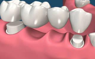 Какие бывают зубные мосты