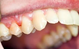 Воспаление корня зуба под коронкой лечение