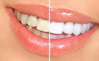 Какое самое безопасное отбеливание зубов