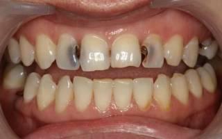Как приготовить содовый раствор для полоскания зубов