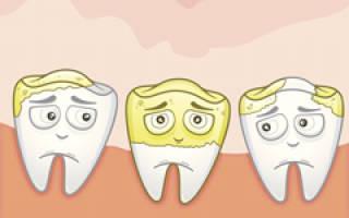 Как избавиться от камней на зубах
